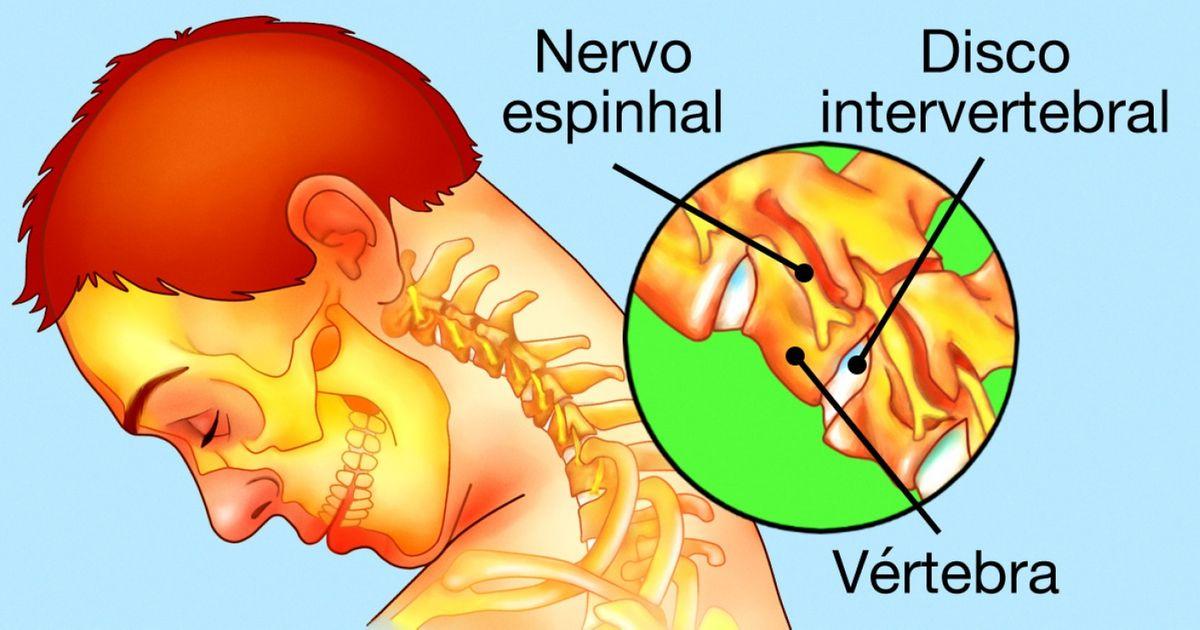 causas de dor no pescoço
